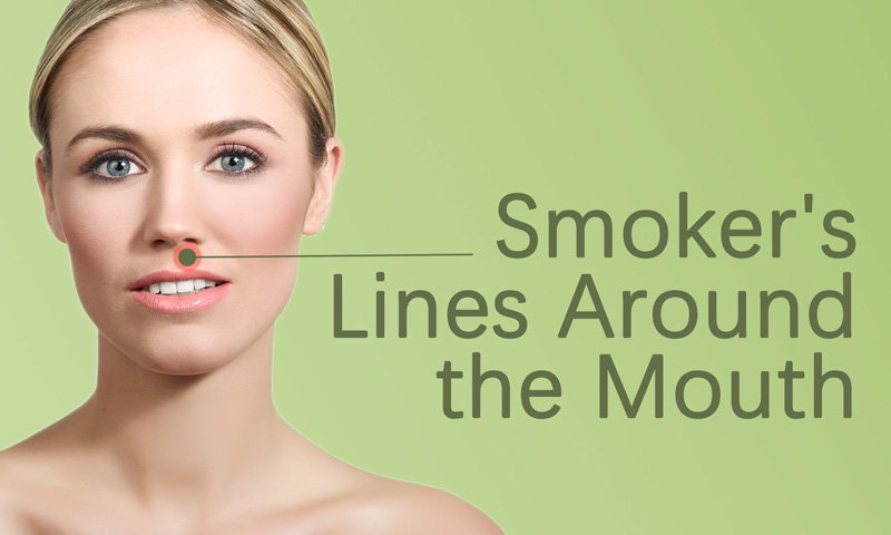 Smoker's Lines Around the Mouth Treatment in Surat